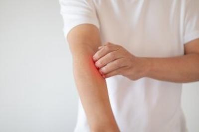 Imagen Destacada - Dermatitis atópica