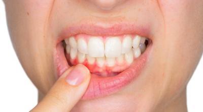 Imagen Destacada - Infecciones dentales. Profilaxis