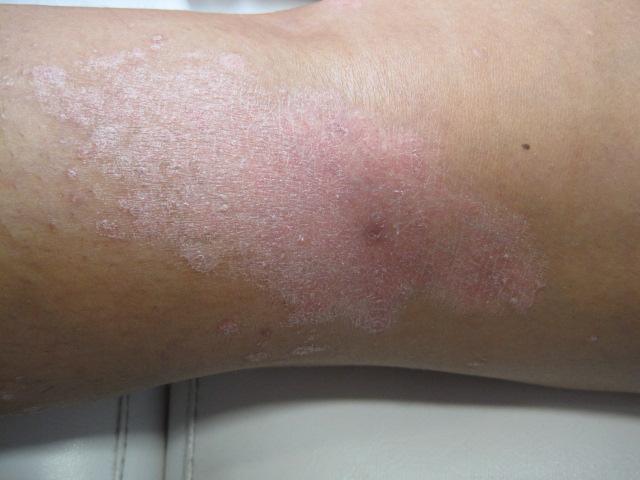 Imagen Destacada - Dermatología. Patología dermatológica básica(III)