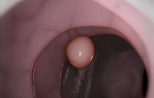 Imagen Destacada - Colonoscopia. Control pólipos